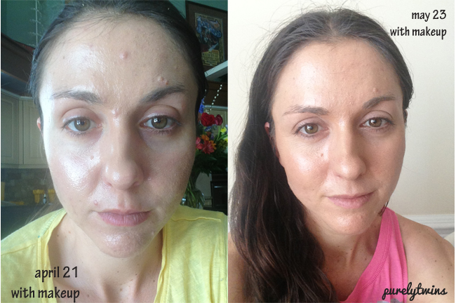 How we have healed our acne what we have changed makeup face ccuart Choice Image