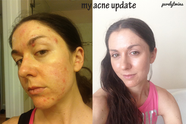 how we have healed our acne: what we have changed