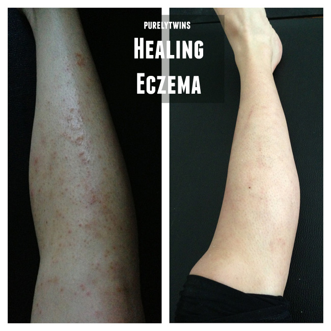 healing eczema through diet and gut healing