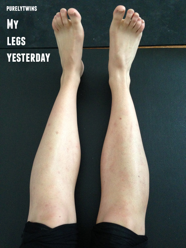 my legs healed - from eczema through diet