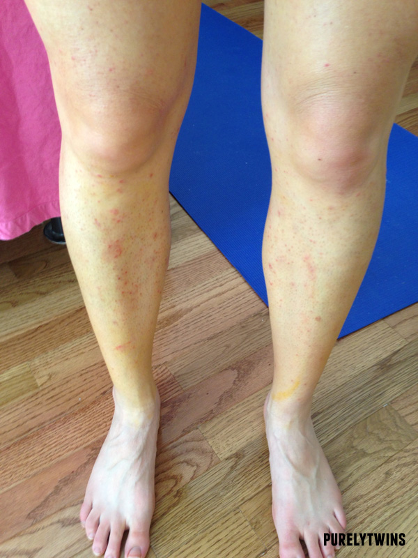 my long journey to healing eczema and the new diet that has