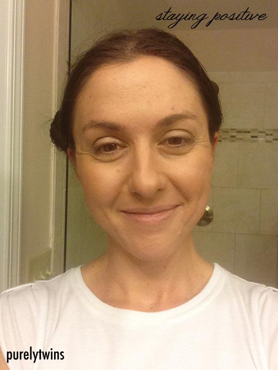 lori acne update