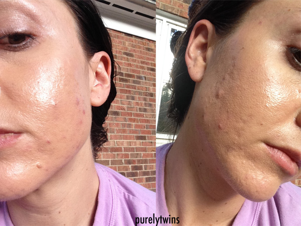 Pcos Acne Journey Continued Supplements And Products That Help