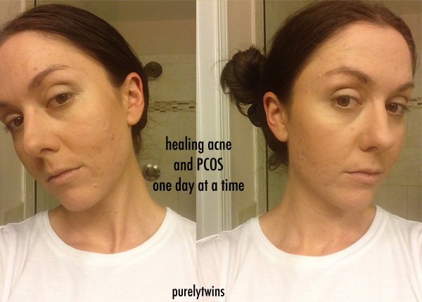 PCOS acne journey continued…supplements and products that help