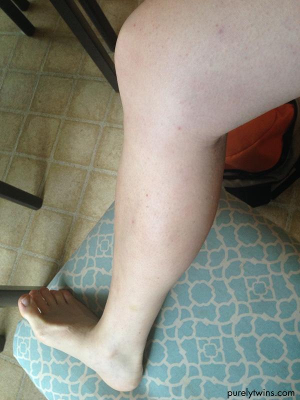 eczema healed on legs