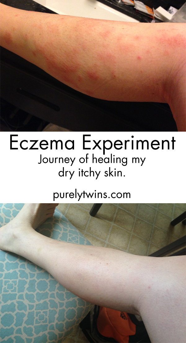 healing eczema through food diet elimination purelytwins