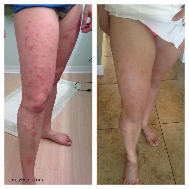 salt baths to lose weight epsom salt detox bath symptoms foot liver detox recipe