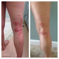 My personal struggle (still) with eczema