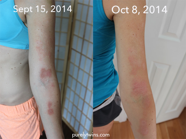 arm-comparison-eczema-contact-dermatitis
