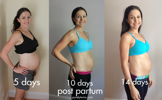 before-after-labor-post-partum