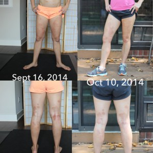 before-and-after-eczema-on-legs