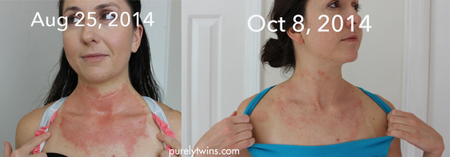 neck-comparison-red-patches-eczema-contact-dermatitis