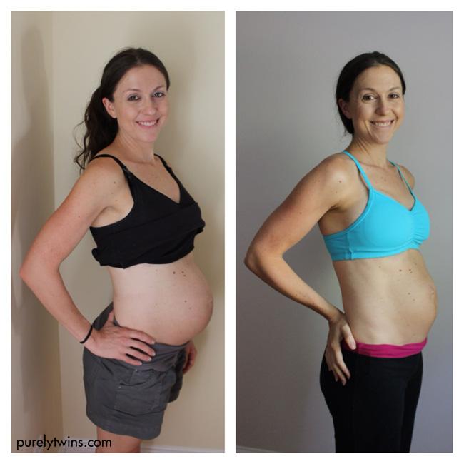 postpartum-pictures-purelytwins