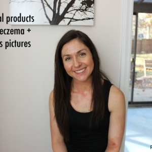 3-topical-products-to-heal-eczema-progress-pictures-adult-eczema-purelytwins