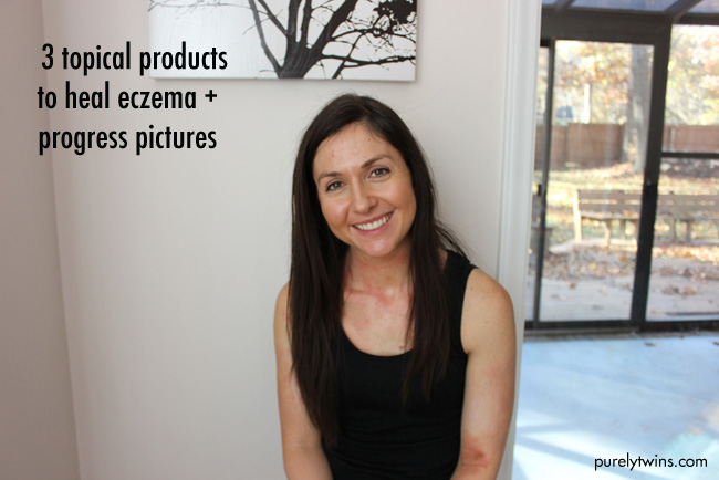 Progress pictures and 3 new products to help heal eczema