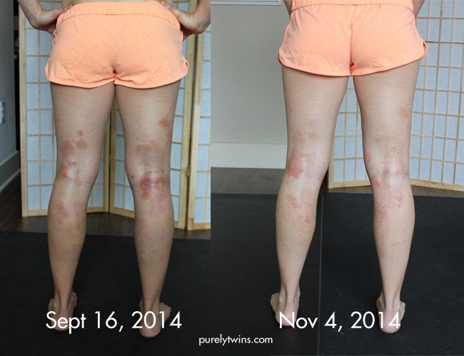 before-after-eczema-on-legs