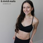 10 weeks post partum and coming to terms with diastasis recti