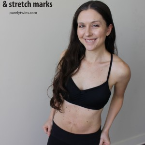 10 weeks post partum embracing my stretch marks and healing ab separation of diastasis recti purelytwins