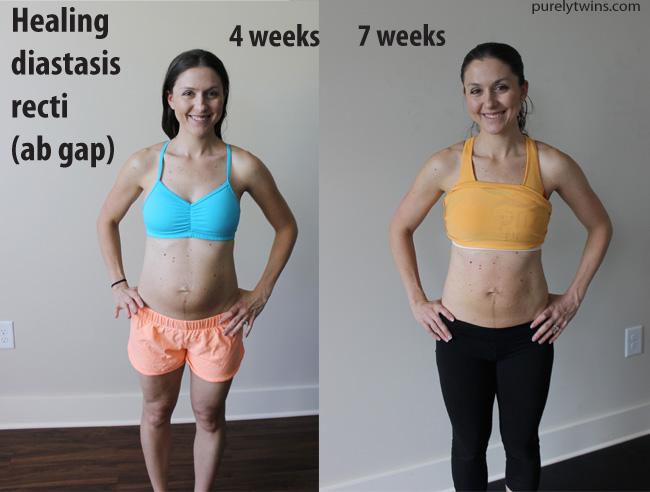 belly-one-month-and-7-weeks-post-partum-healing-ab-separation-purelytwins