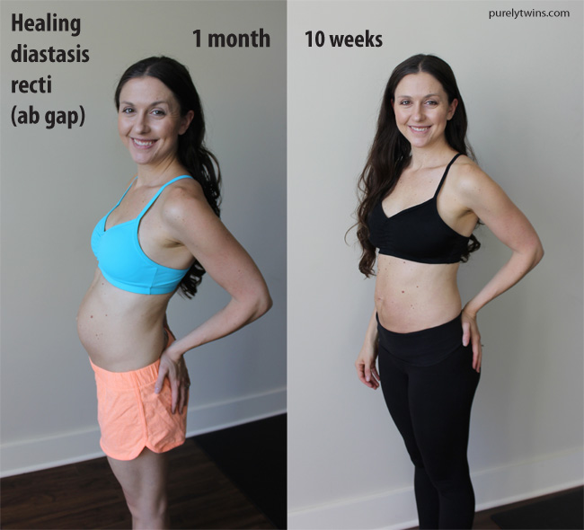 post-partum-belly-update-healing-ab-gap-10weeks-vs-one-month-purelytwins