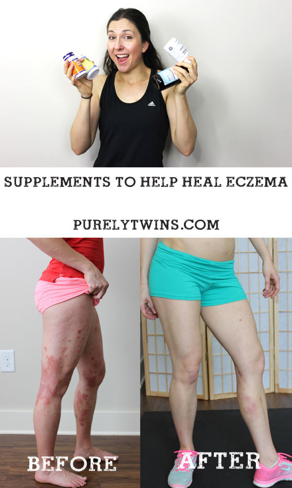 Supplements to heal eczema from vitamin d to probiotics to fighting candida. @purelytwins