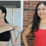 Phototherapy to treat eczema: before and after pictures