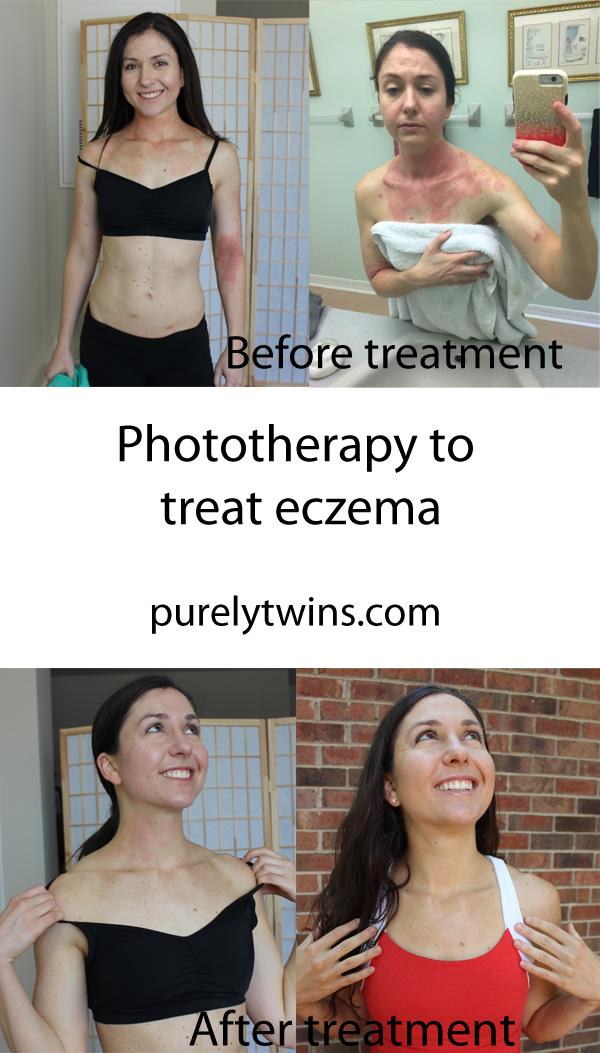 Sharing my personal journey healing eczema. I used phototherapy for treatment of my eczema and it helped with the itching.