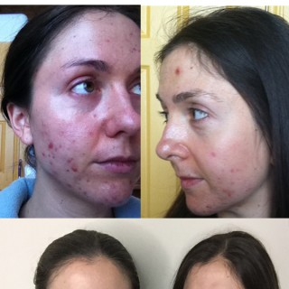 Why use face oils to help with acne.