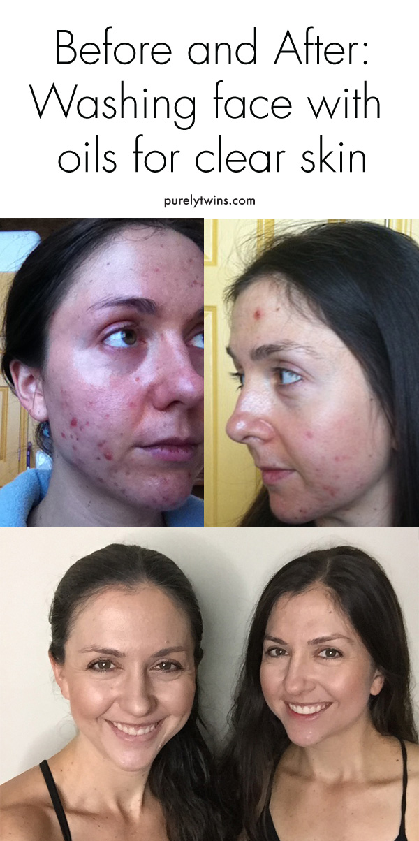 Before and after pictures of using oil cleansing method to clear skin. Heal adult acne with natural oils.