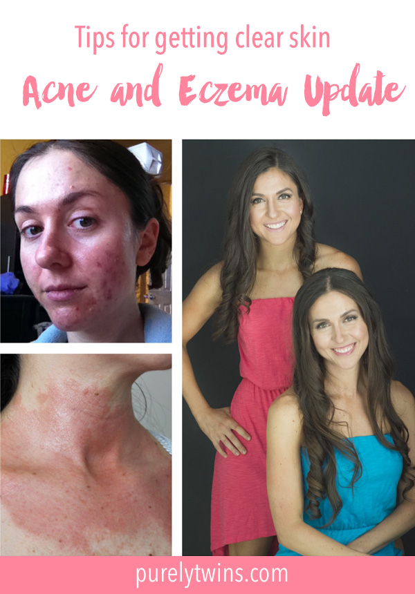 Struggling to get clear skin or form a better relationship with your body? We share tips that helped us overcome our skin struggles. #1 is a hard one to overcome and #3 is very important to be more aware of.