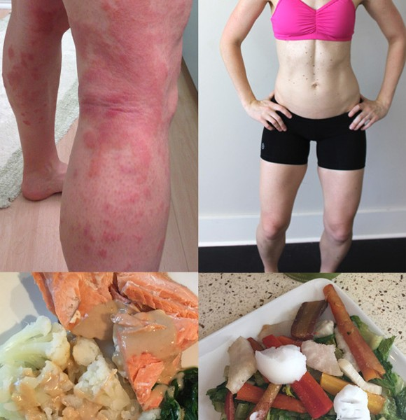Diet and eczema: what to eat and not eat