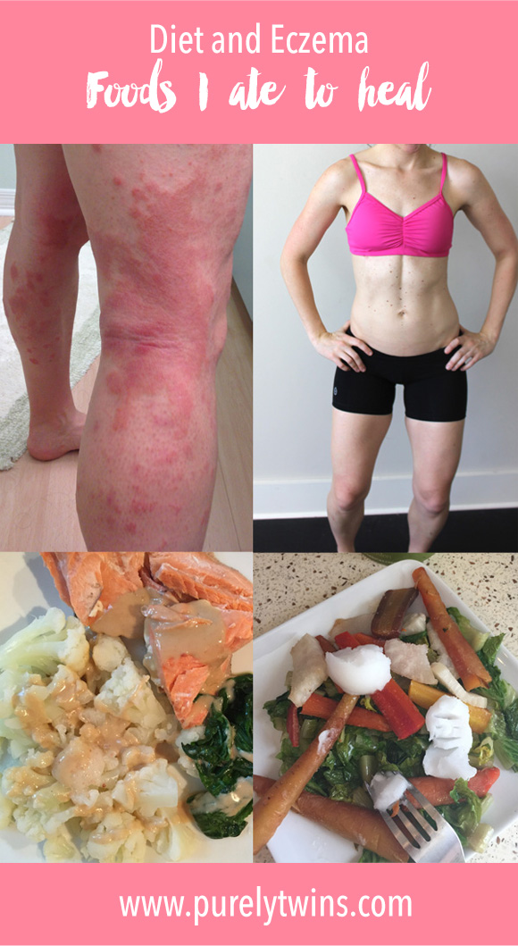 I have been eczema free for one year. I am talking all about diet and eczema. What foods to avoid and what foods to eat to help heal your skin. If I can heal my eczema so can you!