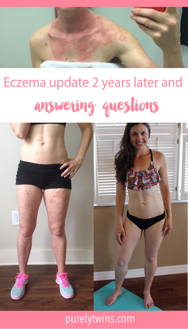 Celebrating being eczema free. I've a had long journey, the worst started 2 years ago when my eczema spread all over my body. Answering questions from readers. I hope my story inspires and helps you. Please share with anyone who has eczema.