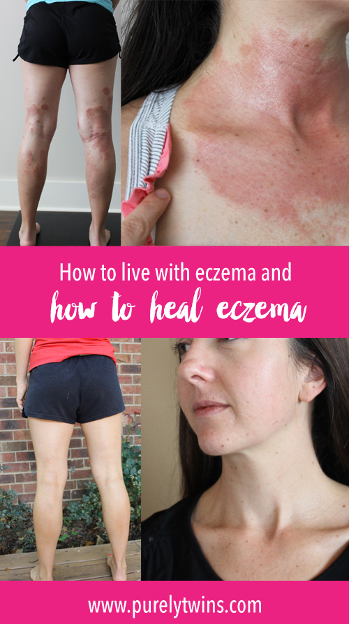 Learn how to LIVE and HEAL eczema. I am 3 years of being eczema free and I chat with Abby from Prime Physique Nutrition and fellow eczema suffer. We chat about emotions, supplements and so much more. If you have eczema or know of someone who suffers I hope this serves you on your healing journey.