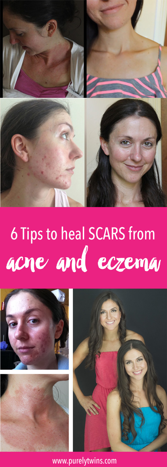 We understand how frustrating and embarrassing scars can be. We are sharing 6 tips that helped reduce the appearance of our scars from acne and eczema. Please share this with anyone you know suffering from scars and looking to get clear glowing skin.