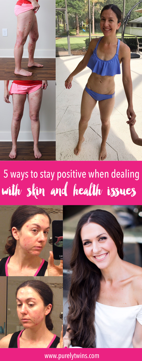 5 Ways To Stay Positive with health and skin issues (Acne, Eczema, Autoimmune Issues) It is easy to stay positive with everything in your life is going good, right? And when your health or skin isn't doing good it is VERY hard to stay positive because you are either in pain or just feel miserable. In this video we share how we healed our health and skin issues. We hope this video serves you in overcoming your illness.