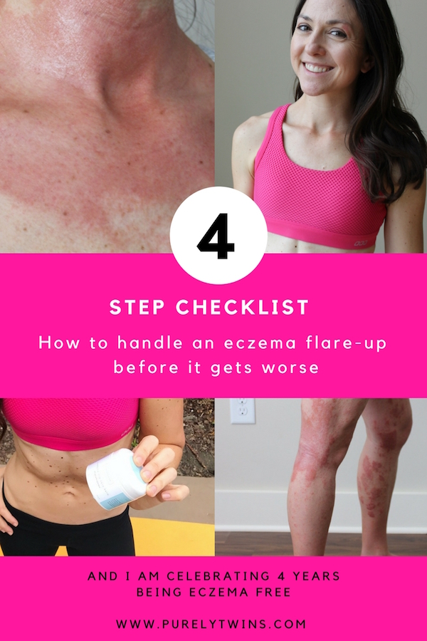 How To Handle An Eczema Flare-Up Before It Gets Worse {My 4 Step Checklist} I am celebrating 4 years being eczema free and sharing how I handle when I experience an eczema flare-up. Please share this with anyone you know suffering from eczema.