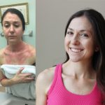 How to handle an eczema flare-up before it gets worse {my 4 step checklist}