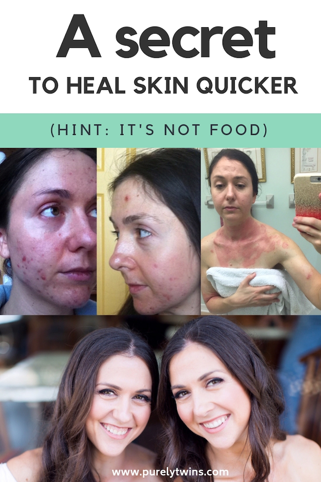 How to manifest clear skin quicker (hint it's not with food)- Are you hoping or believing things are working? In this video we discuss the mindset shift that is the key to healing your skin for anything really. If you believe you can heal you will. If you believe you can you will. #acne #manifesting #lawofattraction #eczema #beautytips