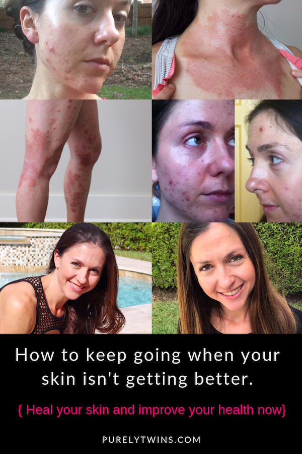 Feeling discouraged your skin or health isn't healing or has not changed? In this video we share how to keep going when you feel discouraged when you aren't getting better. #beautytips #acne #eczema #mindset #selflove