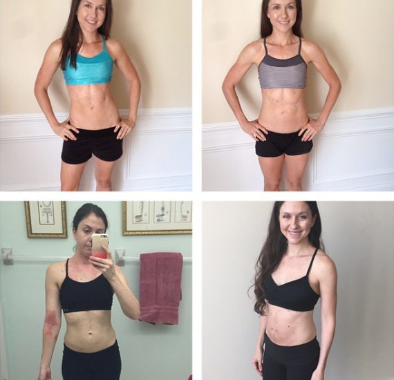 Fitness trainers who gained weight to heal. This is not your average before and after pictures. But I was healing eczema and Lori diastasis. Click to hear about our mindset tips to help with the fear of gaining weight. #eczema #diastasis #healthjourney