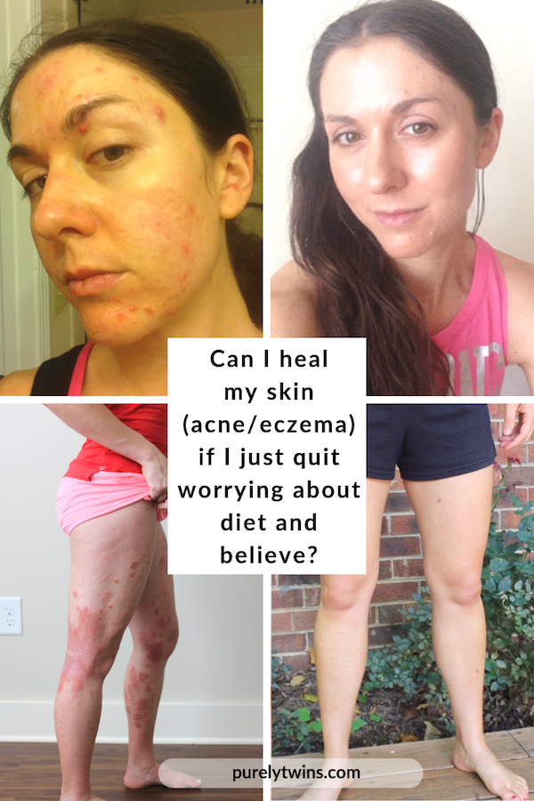 Can I really heal if I just quit worrying about my diet and believe? Is it enough to heal eczema & acne? Sharing our thoughts answering a readers question. You need to make peace, stop stressing over food and do this instead. If you do this your skin will heal.