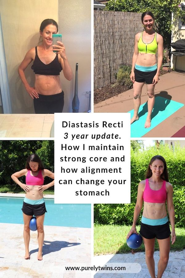 Diastasis Recti 3 year update and tips for keeping your core strong and flat each year after having kids. How one simple thing can make your stomach flatter quickly! See more here