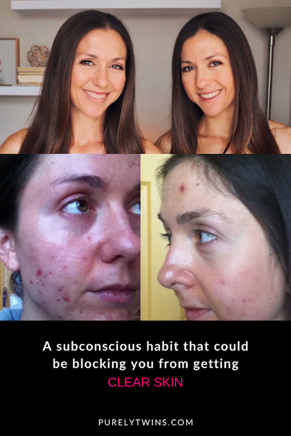 Sharing a powerful tip to help you get clear acne and skin for good. Are you doing this habit of looking for something wrong with your skin in the mirror? We hope this video serves you in seeing how to affirm what you want with your skin.   Both Lori and I have struggled with adult acne and want to help others get clear healthy-looking skin.