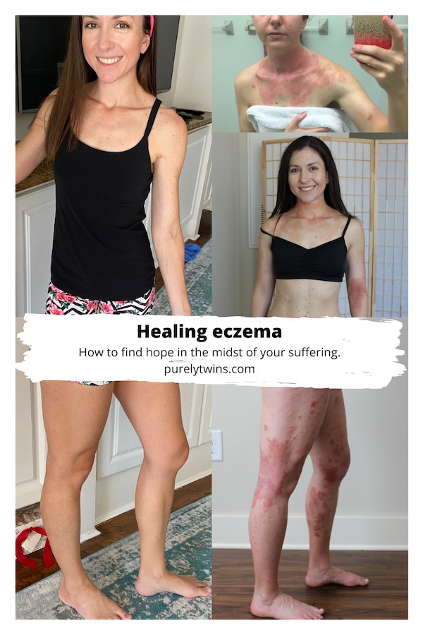 Healing Eczema | Finding hope in Jesus - Sharing some thoughts on healing eczema and addressing false teachings around good health is a promise for God. Is it? #eczema #faith